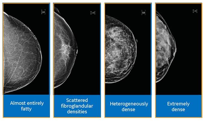 Automated Breast Ultrasound Toronto